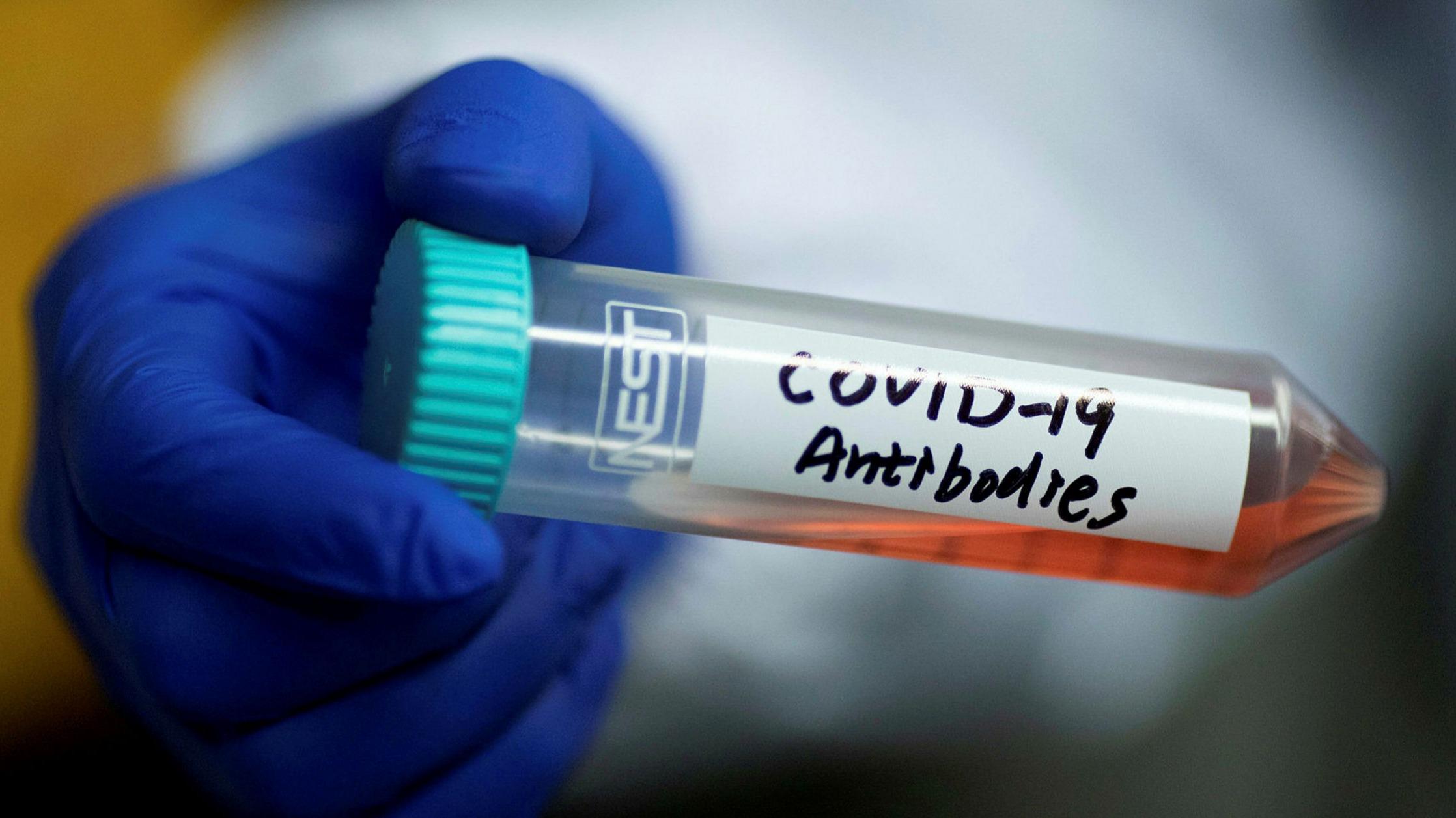 UK Study Suggests 26% Drop in Population's Immunity to Coronavirus